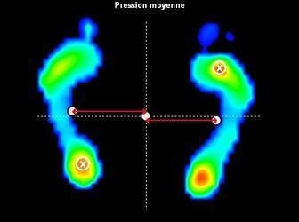 Analyse stabilométrique